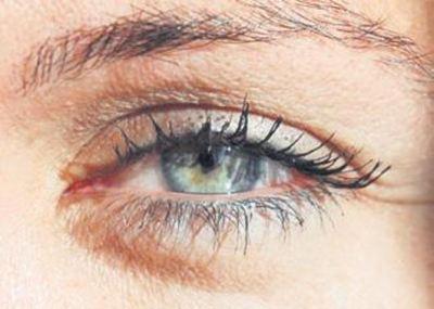 Göz Çevresi Bakımı ve Göz Altı Torbaları