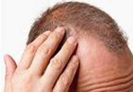 Saç dökülmesine ilginç çözüm