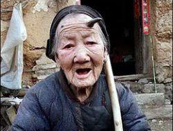 Yaşlı Kadının Boynuzu Çıktı!