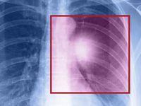 Akciğer Kanseri Hastaları Artık Daha Umutlu